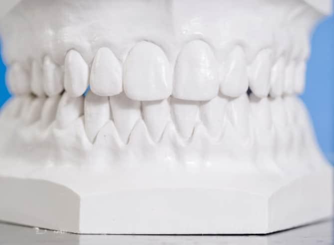 Dentadura