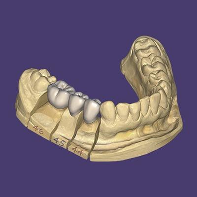 exocad ortodoncia