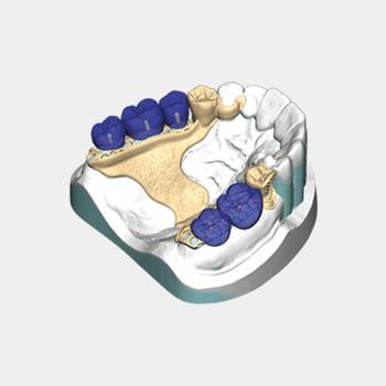 software clinica dental -exocad