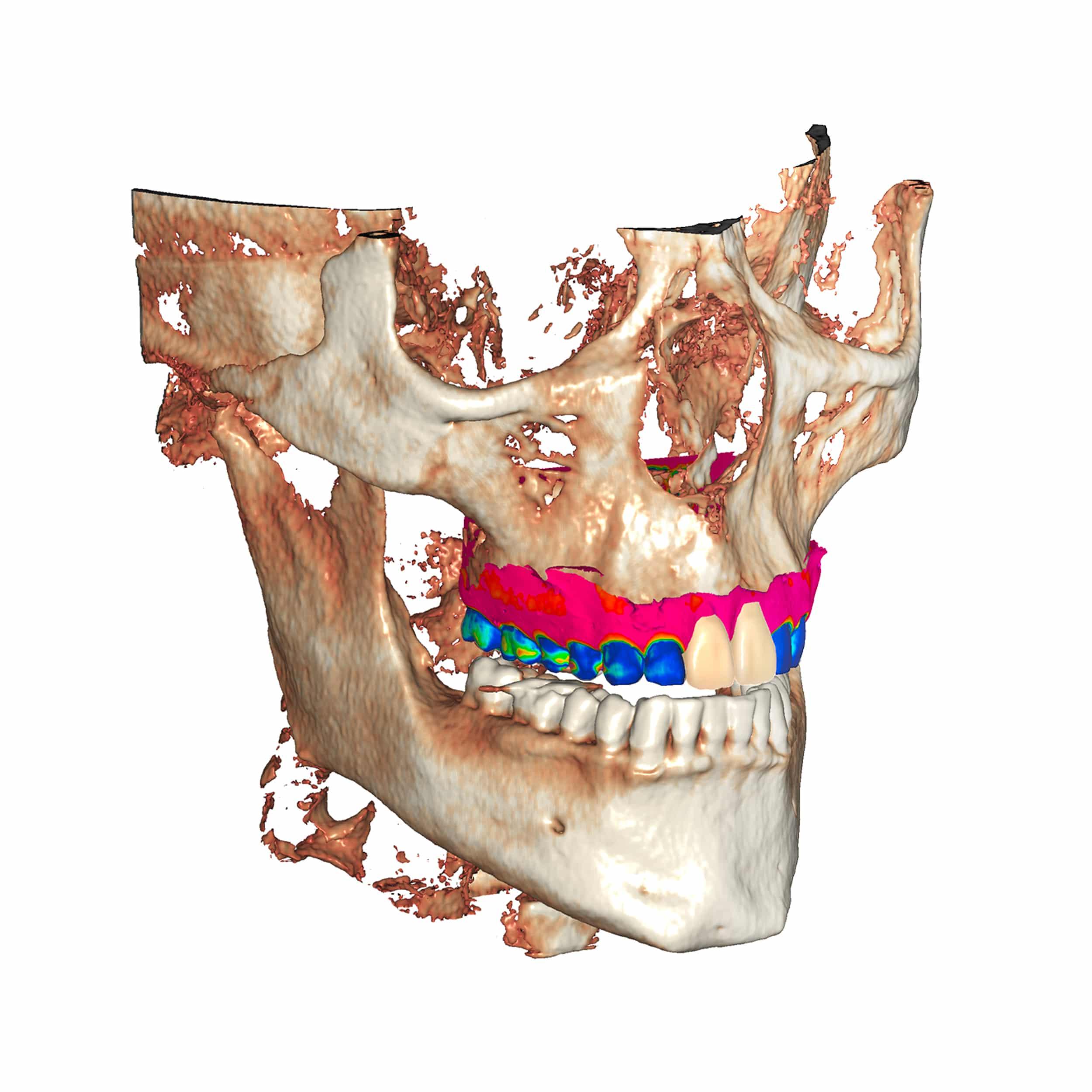 software dental exocad
